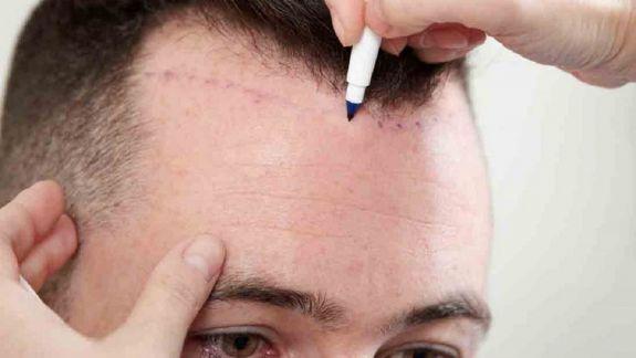 Transplantul de păr: 8 răspunsuri detaliate de la chirurgul plastician Iulian Balan